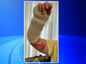 Vítima passou por cirurgia (Foto: Reprodução / TV TEM)